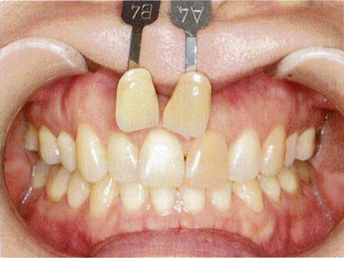 歯髄がない歯のホワイトニングの症例 初診時